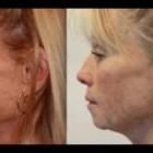 Anti Aging Skin Care Treatment NeriumAD Skincare