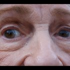 Simple Facial Exercises To Reduce, Get Rid Of, And Remove Eye Bags, Eye Wrinkles, And Dark Rings